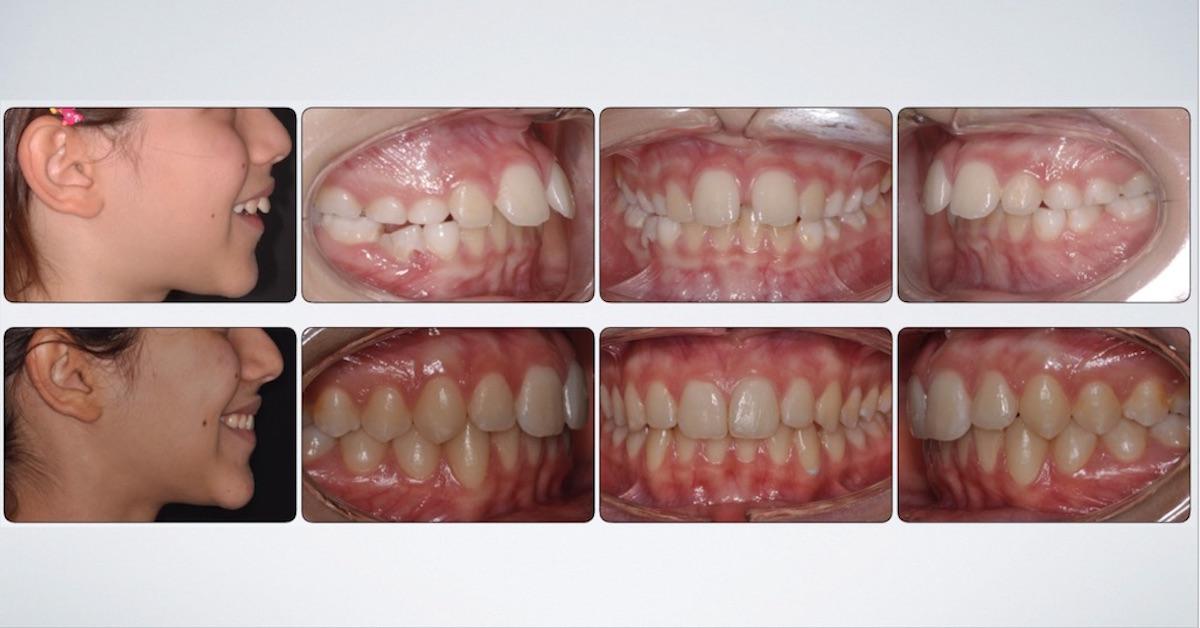 denti sporgenti 2 classe