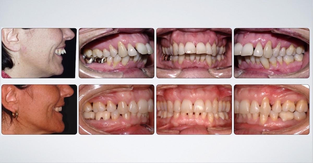overjet denti sporgenti